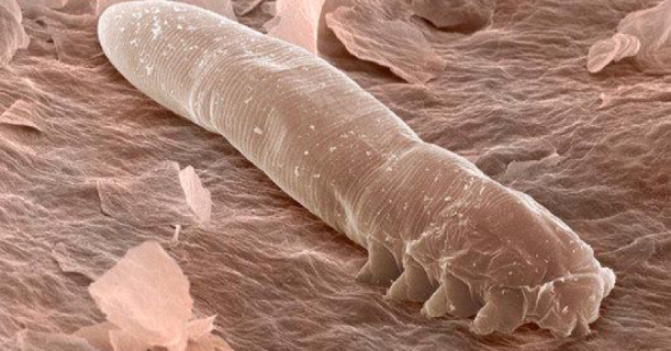 demodex.png